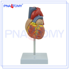 PNT-0400 Atherosklerose Plastic Human Heart Modell für den medizinischen Unterricht