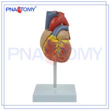 Modèle de coeur humain en plastique d'athérosclérose de PNT-0400 pour l'enseignement médical