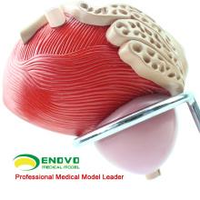 VENDA 12428 Bexiga Urinária Masculina Humana com Modelo de Próstata - 2 Partes, 3x Tamanho Real