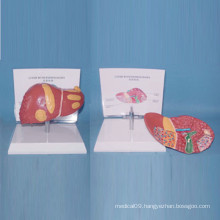 Human Pathological Liver Medical Anatomy Model for Teaching (R100106)
