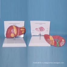 Модель медицинской анатомии патологической печени человека для обучения (R100106)