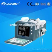 2d máquinas de ultrasonido y escáner de ultrasonido para abdomen, hígado, vesícula biliar, páncreas, bazo, riñón, útero, vejiga DW330