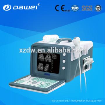 Échographes 2D et scanner à ultrasons pour l'abdomen, le foie, la vésicule biliaire, le pancréas, la rate, les reins, l'utérus, la vessie DW330