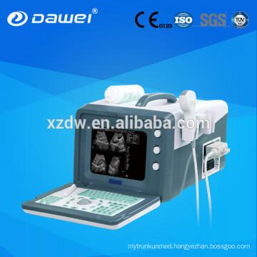 2d ultrasound machines& ultrasound scanner for abdomen,liver,gallbladder,pancreas,spleen,kidney,uterus,bladder DW330
