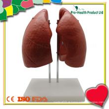 Pulmão humano analógico de plástico anatômico para ensinar
