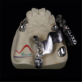 Durable Dental Telescopic Crown