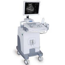 DW-370 2017 New design medical equipment ultrasound machine