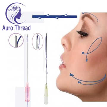Sterile Pdo Twin Thread Stitch Face Lift
