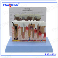 PNT-0528 High Graded Parodontitis Dental Zähne Modell