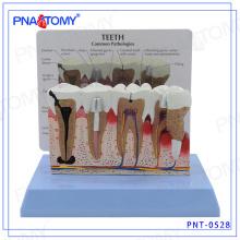 PNT-0528 Modelo de dentes dentais de doença periodontal de alto grau