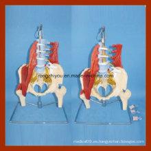 Modelo patológico disco de tamaño natural lumbar con la pelvis y modelo de media pierna