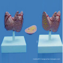 Human Thyroid Medical Anatomy Demonstration Model (R130105)