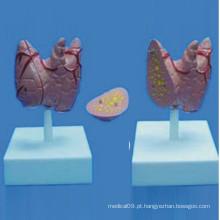 Modelo de demonstração de anatomia médica da tireóide humana (R130105)