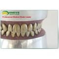 Modèle de pratique d'extraction de dent de dents en métal d'EN-E11 pour la pratique préopératoire de docteur