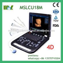 MSLCU18M Best Sale Color doppler ultrasound machine 3D/4D Color Doppler ultrasound