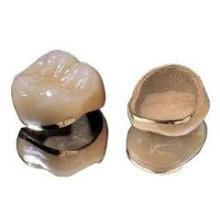 High Quality Dental Pfm Crown
