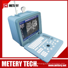 Medical Ultrasound Diagnosis Imaging MT300V series