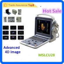 MSLCU28i Gute Auflösung !! Farbe Doppler Ultraschall / 4d Farbe Doppler Ultraschall Maschine / 4d Ultraschall Maschine