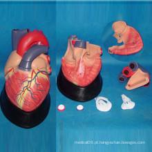 Anatomia do Coração Humano Modelo Médico para Ensinar (R120102)