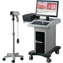Equipo médico ginecológico productos digitales colposcopio sistema de imagen