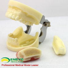 IMPLANT06 (12617) Implantatübungsbackenmodell mit Unterkiefer für Klappen- und Bohrpraxis