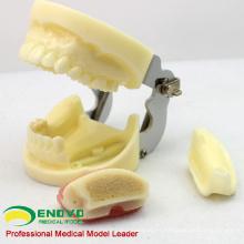 IMPLANT06 (12617) Modelo de mandíbula para la práctica de implantes con mandíbula inferior para practicar colgajos y perforaciones