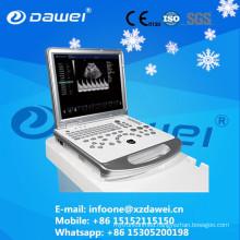 DW-60 Plus 3D echo doppler ultrasound CE&ISO certificate
