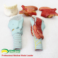 THROAT02(12506) Larynx Model with Toungue and Teeth, Full Size Enlarge, 5 Parts, E.N.T. Models > Larynx Models