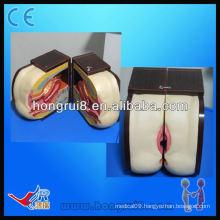 ISO Advanced Female IUD Training model,iud training simulator