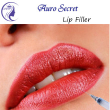 CE-godkjent Hyaluronic Lip Filler Injection