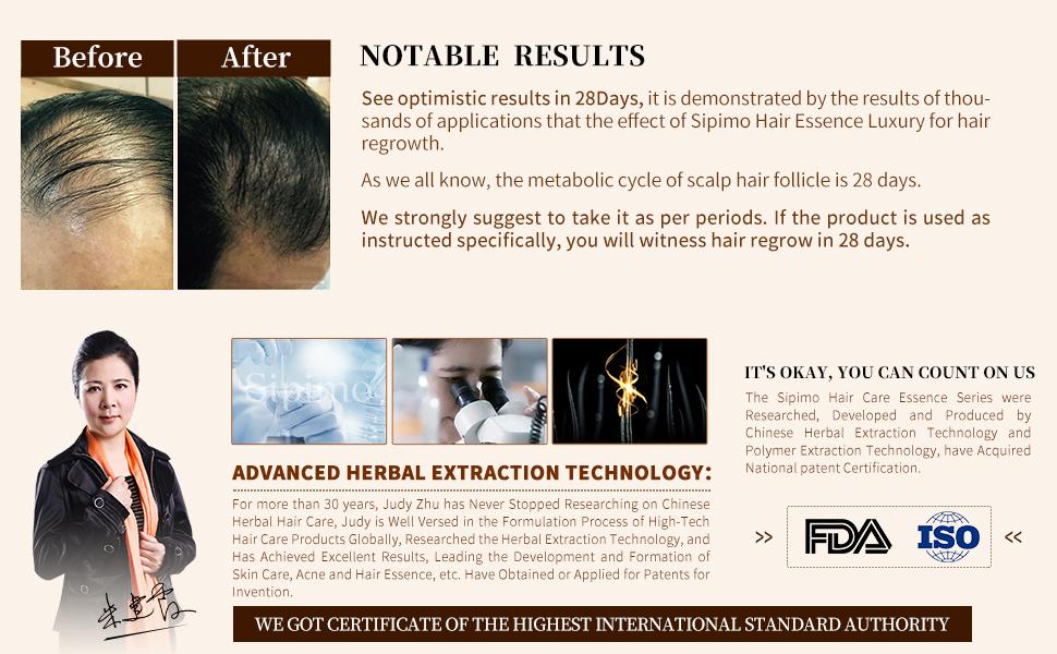 best anti hair loss spray
