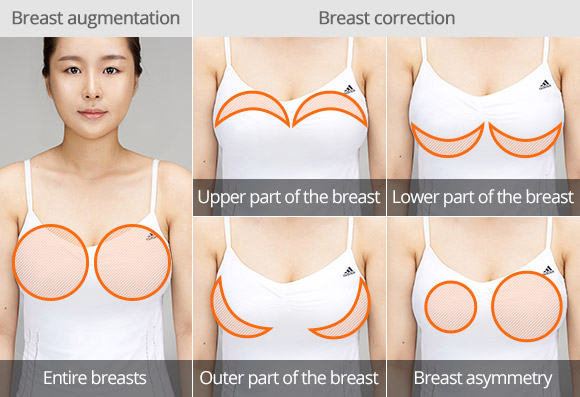 Breast And Buttocks Enlargement