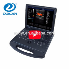 DW-C60 laptop basic 4D function equipment color doppler portable ultrasound machine