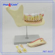 Modelo de hueso PNT-0537gc directo fábrica de dientes y modelo de mandíbula