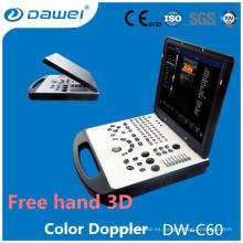 Precio de la máquina del eco de DW-C60 2d, precio del ultrasonido del doppler del color de la computadora portátil