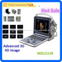 2016 Neueste Marke MSLCU28I 3d / 4d Laptop / portable Farbe Doppler Ultraschall / Farbe Doppler Ultraschall Ausrüstung Preis