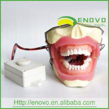 АН-Е16 модель извлечения анестезии с Зуммером может быть установлен на модели головы