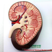 VENDRE 12435 Modèle de science médicale Coupe rénale, néphrons et glomérules, modèles d'anatomie> Modèles urinaires