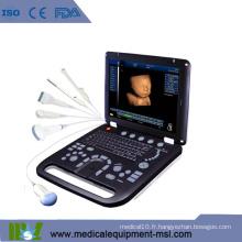 MSLCU18K Doppler couleur Échographie portable pour la grossesse