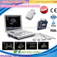 MSLPU33-I ordinateur portable B / W ecocardiogrammes à ultrasons avec haute résolution rotatif 15 pouces écran LED