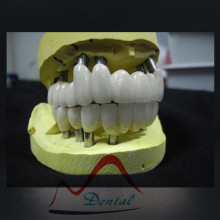 Cementable Dental Implant Bridge