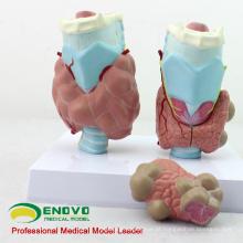 VISCERA13 (12550) Modelo anatômico de doenças anatômicas da tireóide com 4 partes
