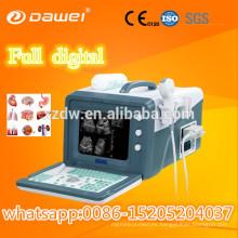Precio de la máquina del ultrasonido protable 2D y el mejor precio para la máquina ultrasónica móvil