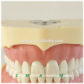 BF Type Screw Teeth Dental Study Model 13005, Replacement Teeth Suit for Frasaco Jaw
