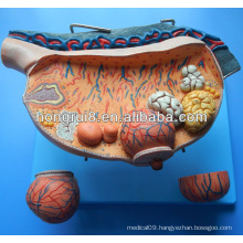 ISO anatomical histoembryology ovary model, oophoron model