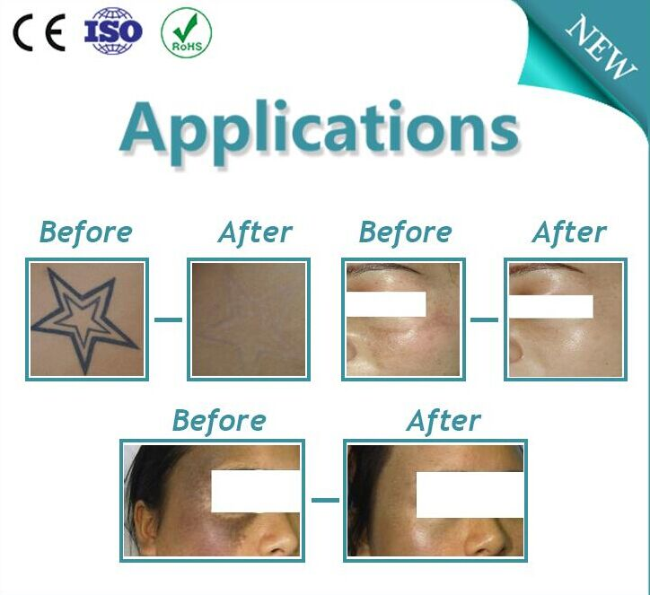 professional tattoo removal therapy multi-wavelength ND-YAG laser skin rejuvenation device
