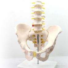 PELVIS05 (12342) modèle médical médical professionnel grandeur nature bassin avec 5pcs anatomie vertébrale lombaire