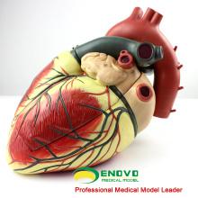 HEART09 (12485) Modelo anatómico de corazón humano de gran tamaño, 3 piezas, Modelos de anatomía> Modelos de corazón