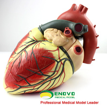 HEART09(12485) Oversized Human Heart Anatomical Model, 3-Parts, Anatomy Models > Heart Models