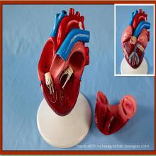 Модель сердца с сердечным пристрастием 2-компонентная модель анатомического дисплея